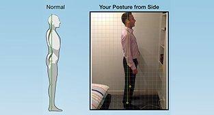 services_postural